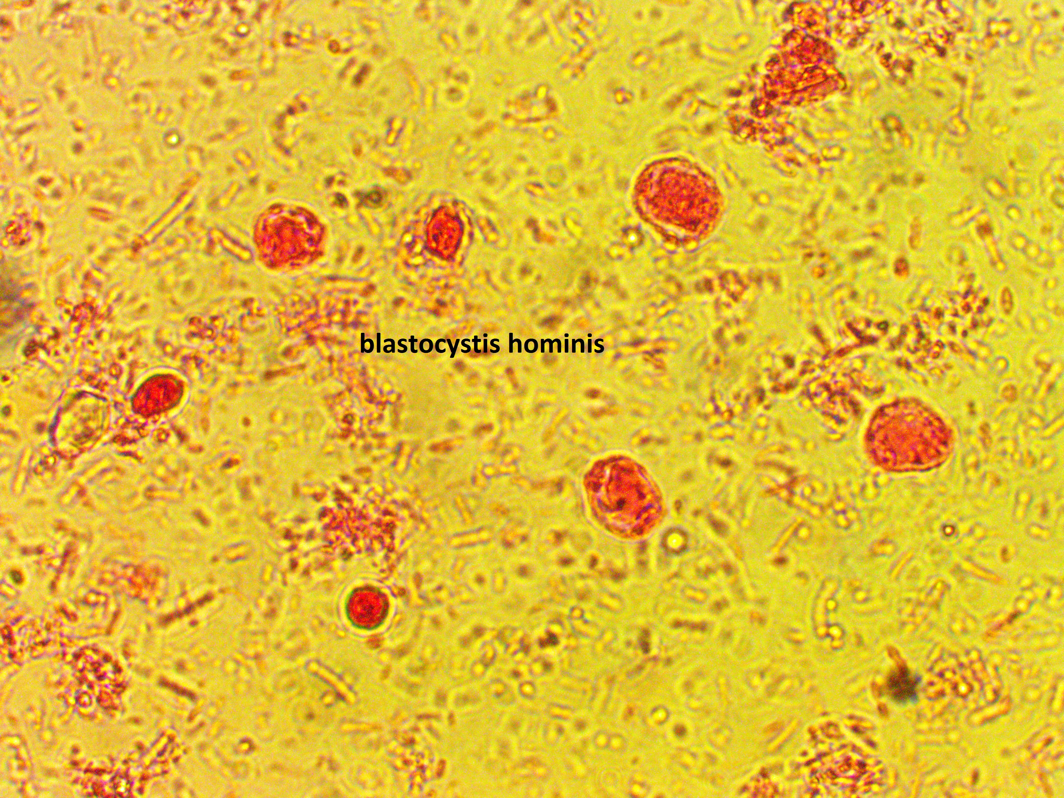 Blastocystis Hominis  : Parasitology Center