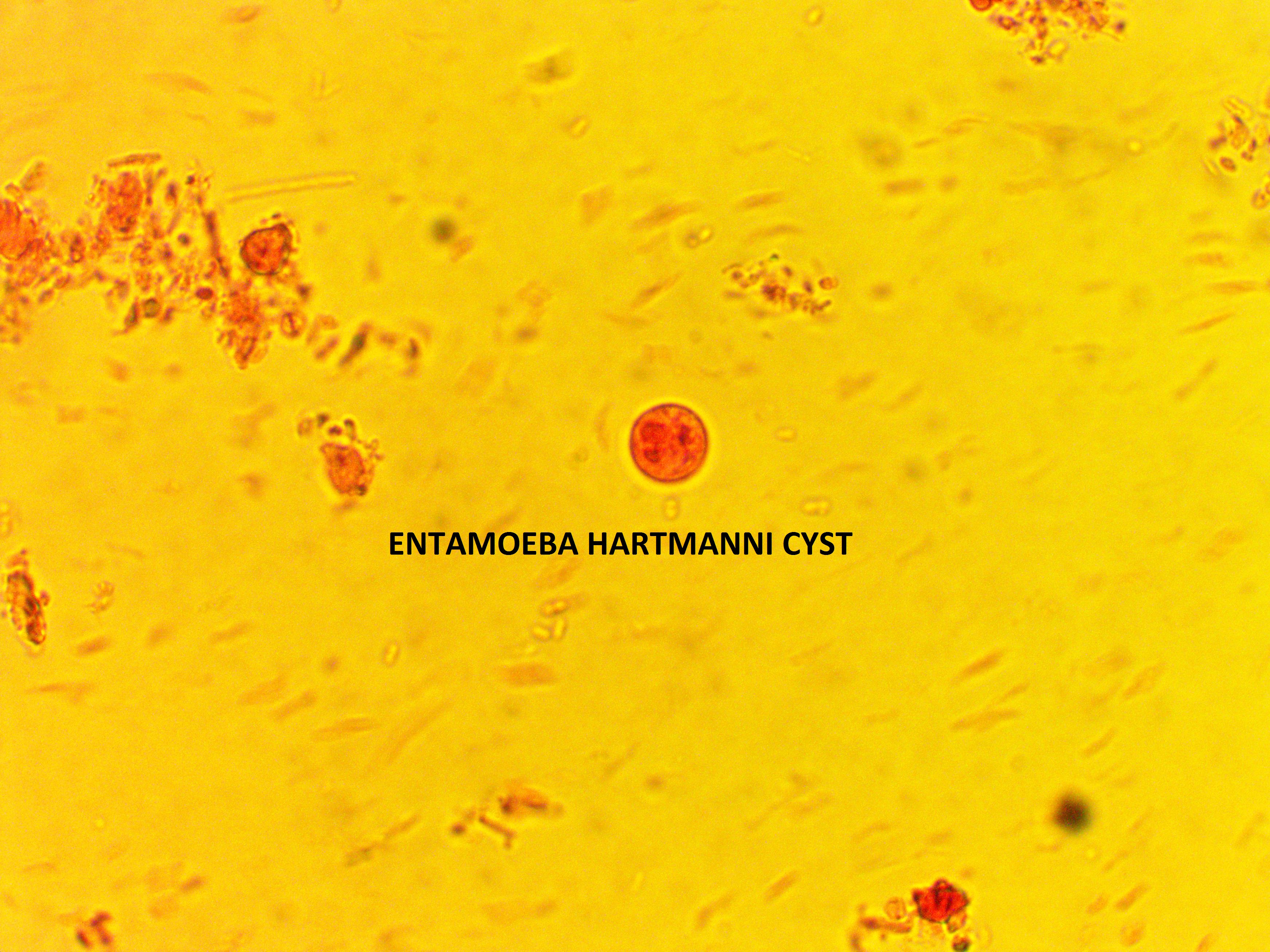 Entamoeba Hartmanni : Parasitology Center