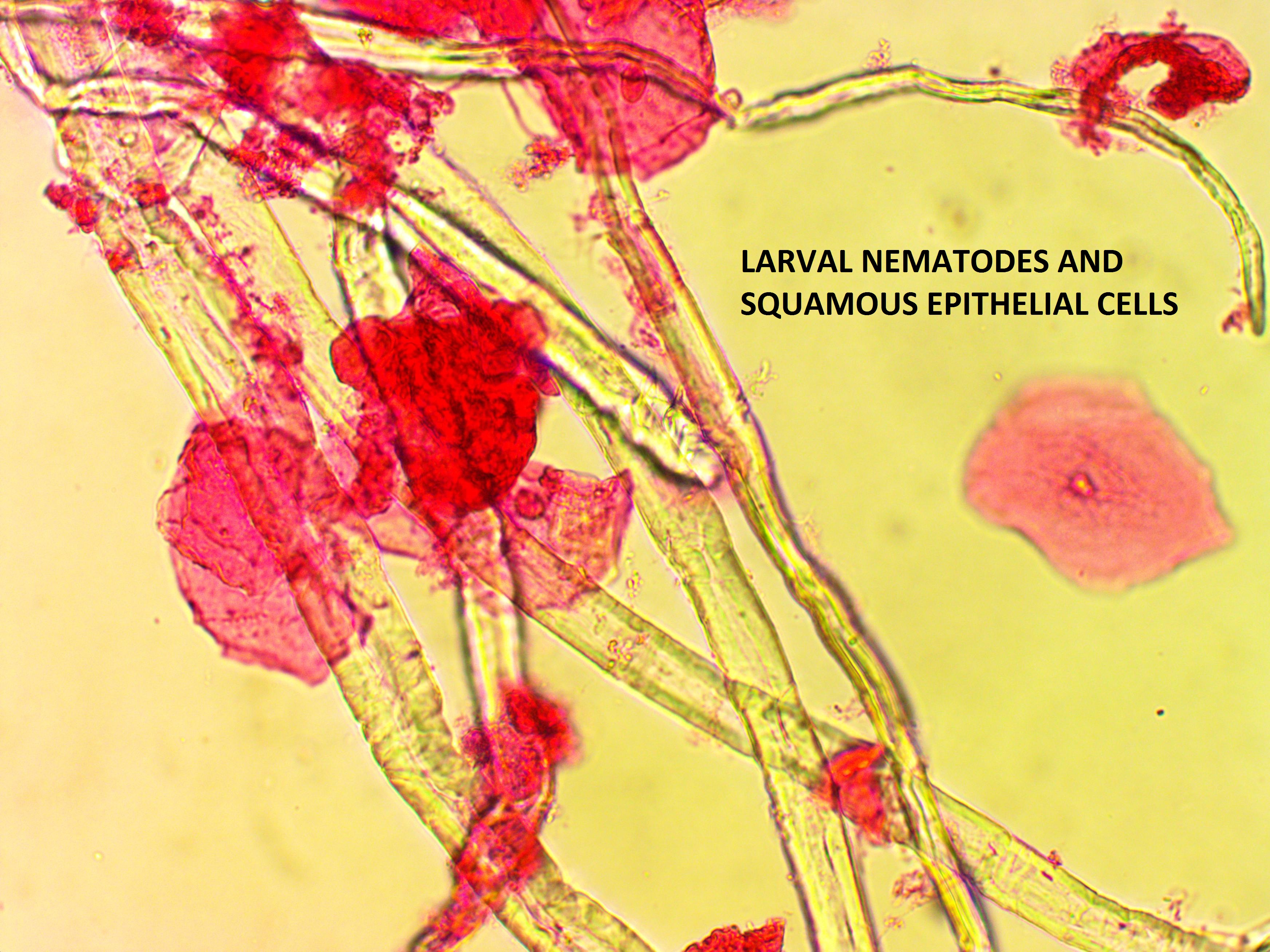 Nematode Larvae  : Parasitology Center