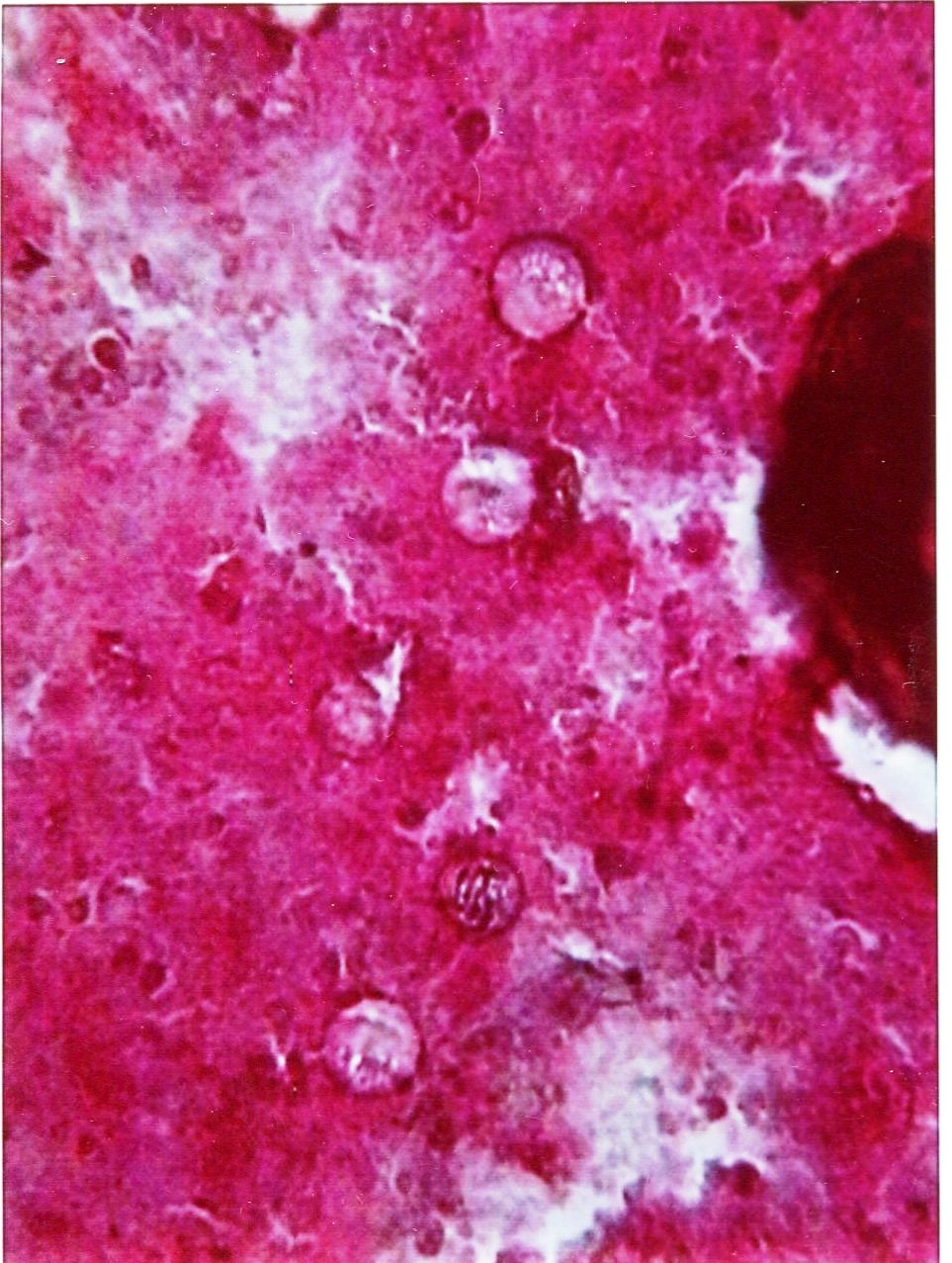 Cyclospora cayetanensis : Parasitology Center