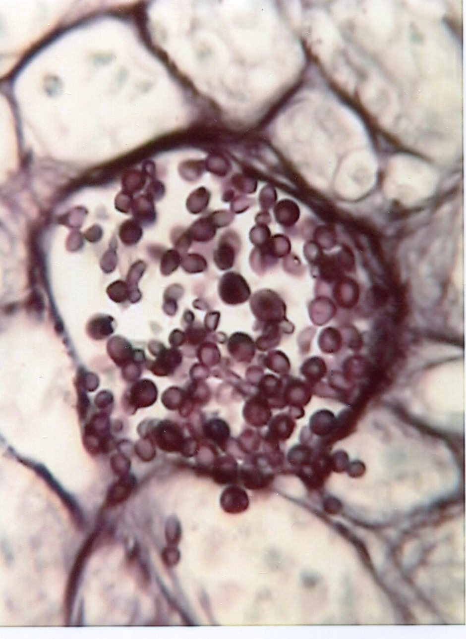 Candida in lungs : Parasitology Center