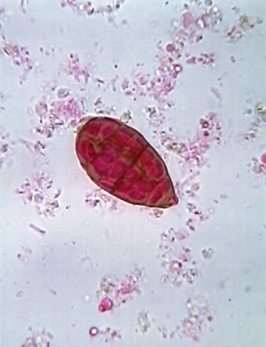 Conidium of the airborne fungus Alternaria : Parasitology Center