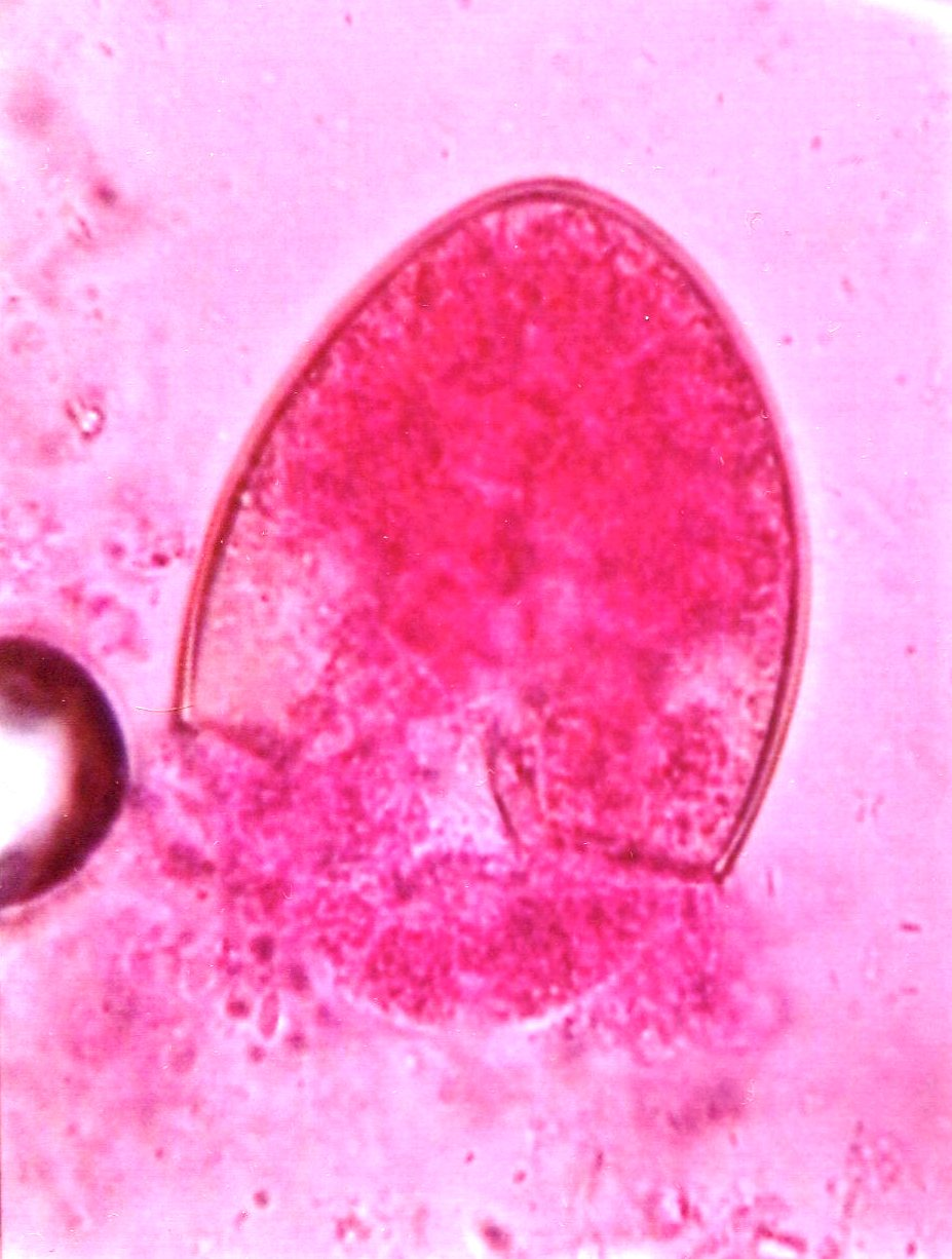 Diphyllobothrium latum (tapeworm) egg : Parasitology Center