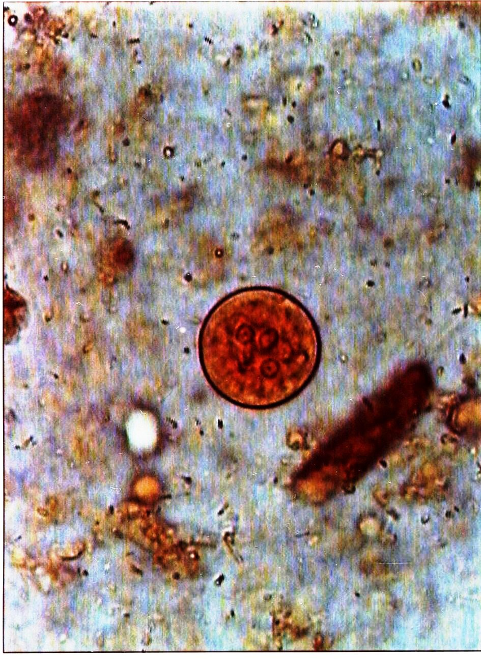 Entamoeba coli cyst : Parasitology Center