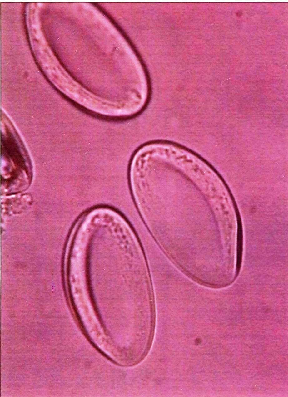 Enterobius vermicularis (pinworm) : Parasitology Center