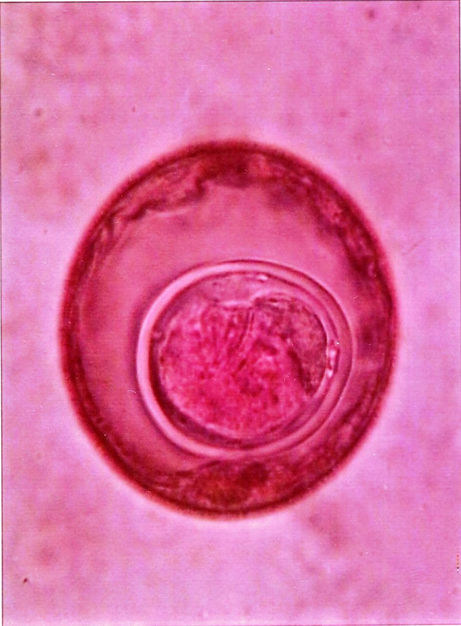 Hymenolepsis diminuta (rodent tapeworm) : Parasitology Center