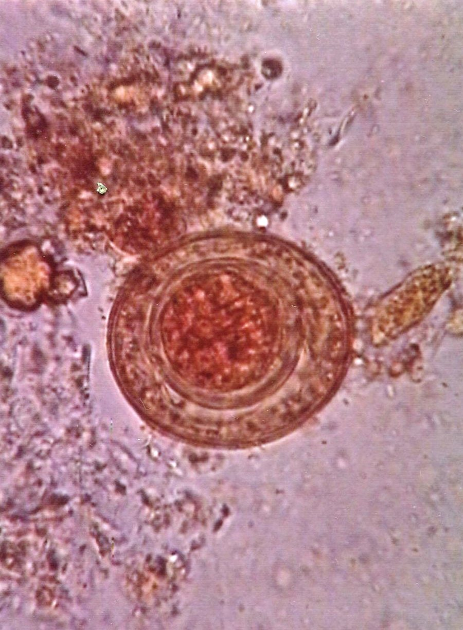Hymenolepsis nana (dwarf tapeworm) : Parasitology Center