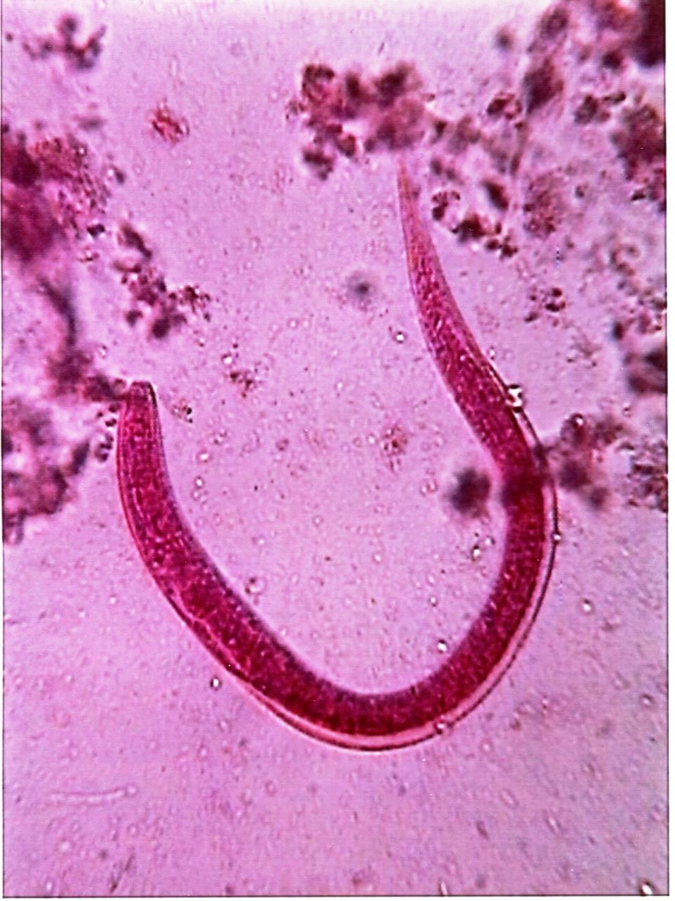 Strongyloides stercoralis (threadworm) larva
