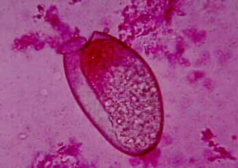 Fasciola hepatica  : Parasitology Center